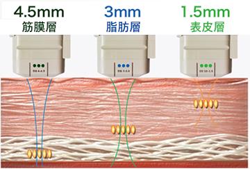 ハイフ3パターン 筋膜層・脂肪層・表皮層
